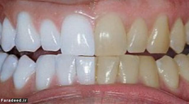 سفید کردنِ بدون دردسر دندان در خانه